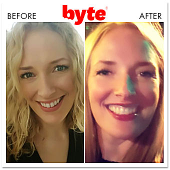 byte before after alison