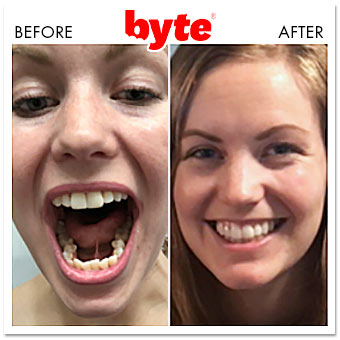 byte before after alyssa