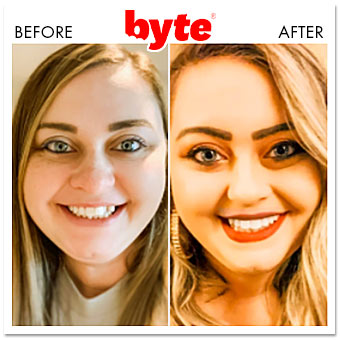 byte before after erin