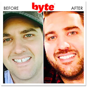 byte before after jeff