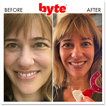 byte before after jenny