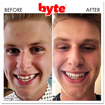 byte before after kevin