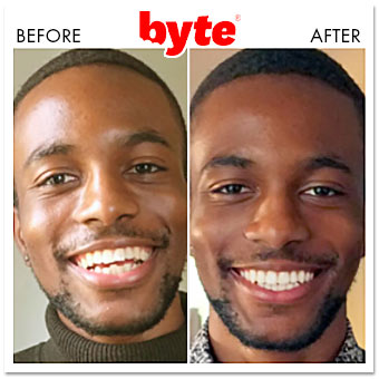 byte before after michael