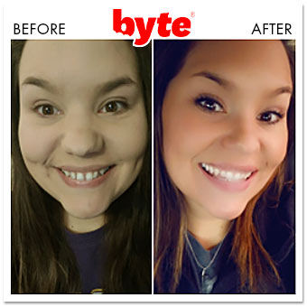 byte before after sarah