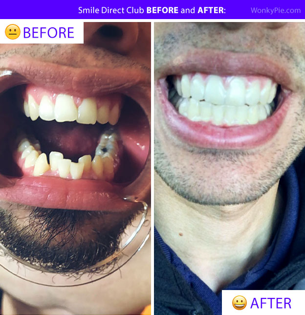 smile direct club before and after bryan teeth