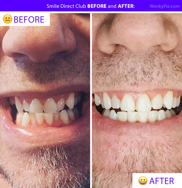 smile direct before after teeth caldred