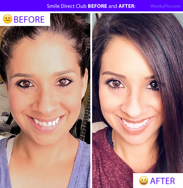 smile direct club before and after cara pic