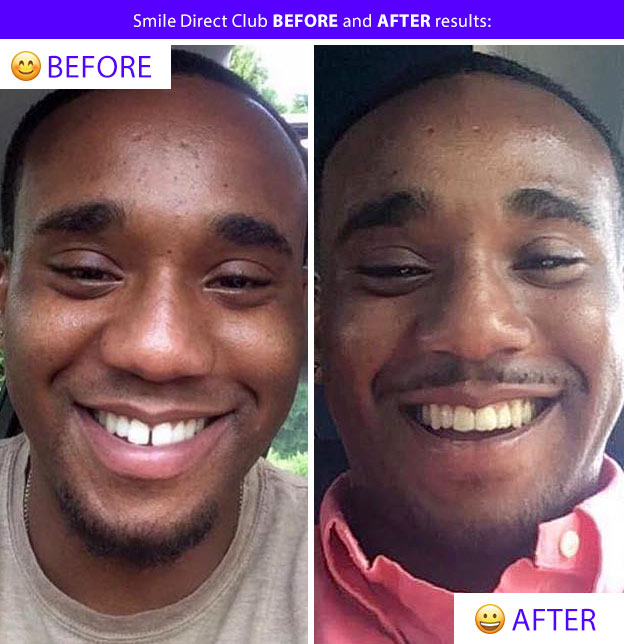 smile direct before after gap