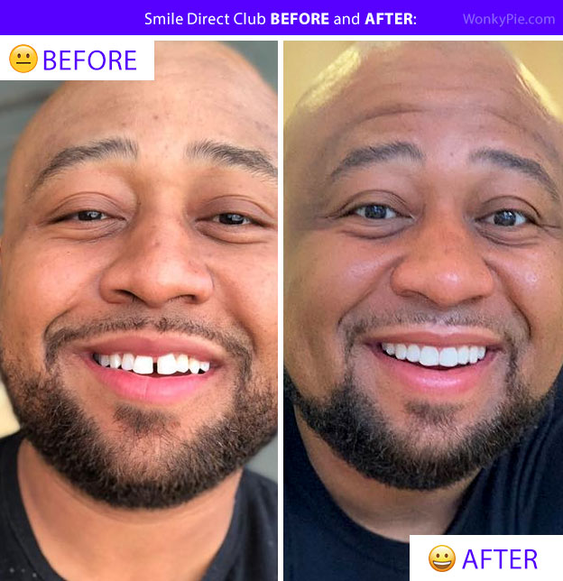 smile direct club before and after jaye photo