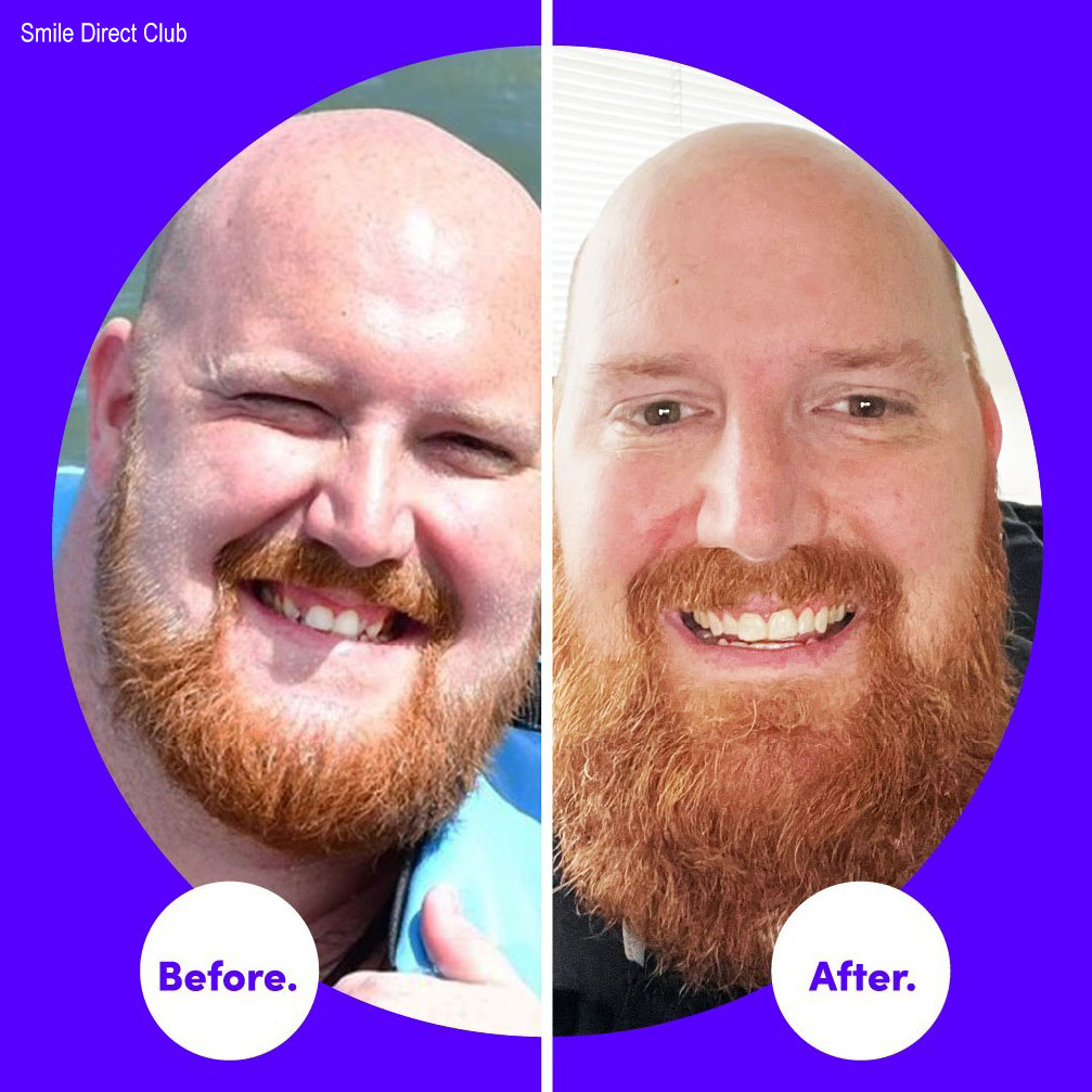 smile direct before after man
