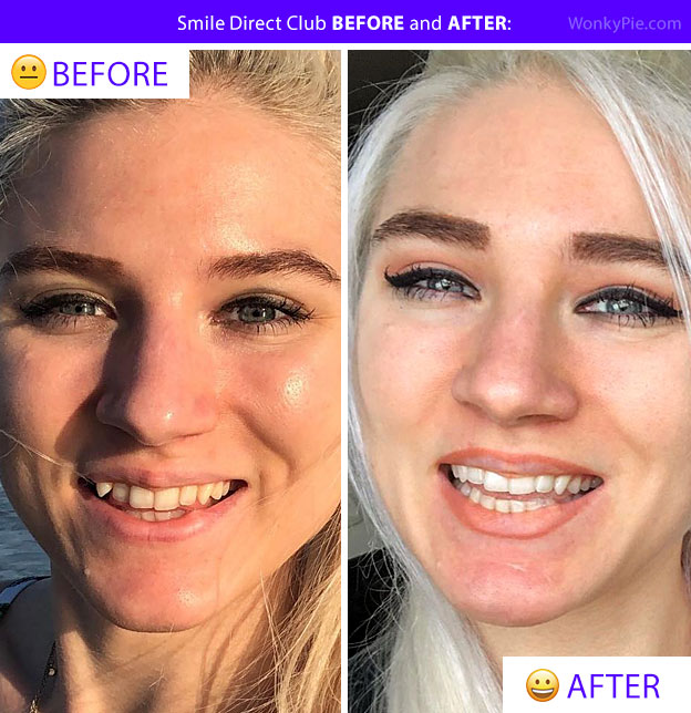 smile direct before after photo