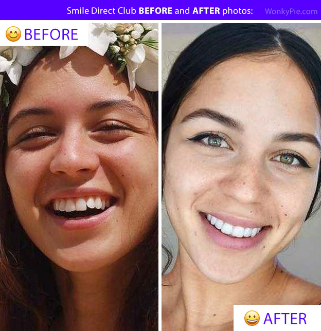 smile direct before after photos