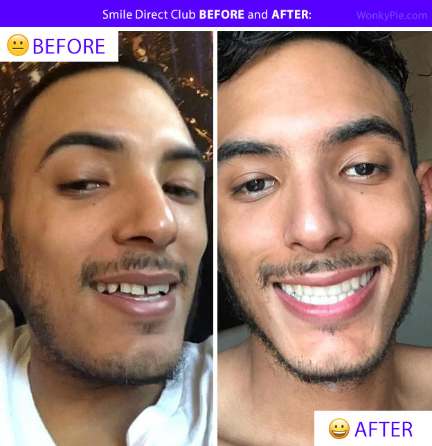 smile direct before after pics