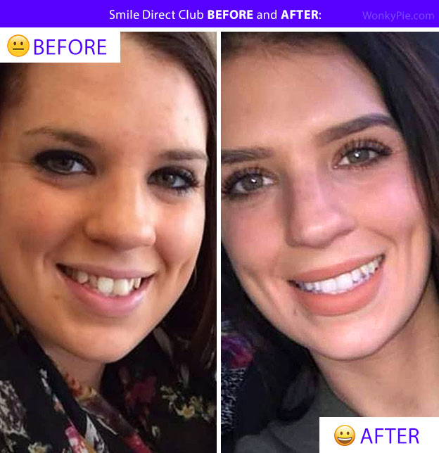 smile direct before after pics teeth