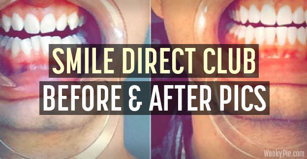 smile direct before after pictures