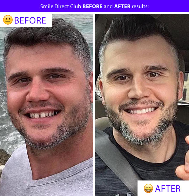 smile direct results before after gap