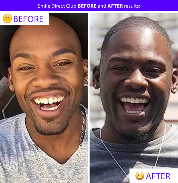 smile direct results after aligners teeth