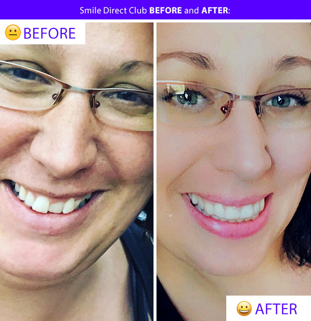 smile direct results mandy